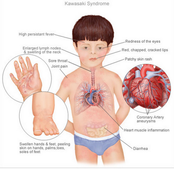 What Is Kawasaki Disease Caused By