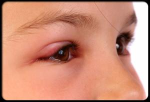pink-eye-conjunctivitis-s4-swollen-eyelid